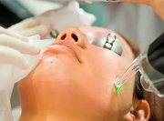 Лазерное удаление шрамов на лице