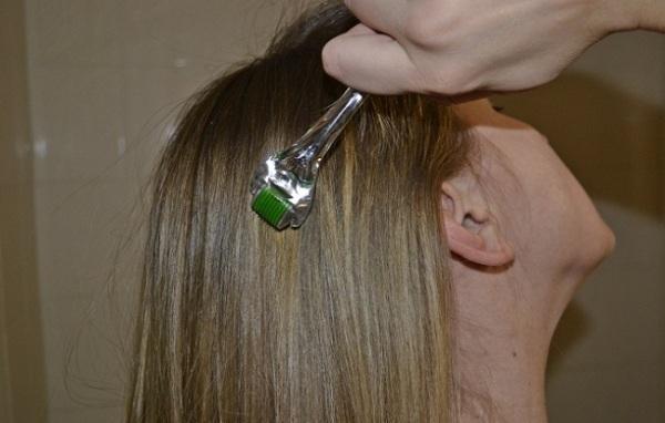 Мезороллер для роста волос в домашних условиях