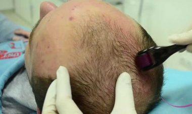 Обзор популярных мезороллеров для волос