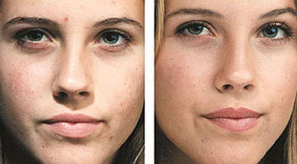 Миндальный пилинг для лица до и после