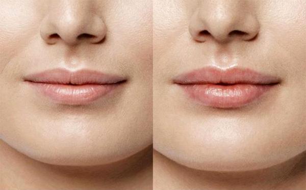 Сколько стоит поднять уголки губ гиалуроновой кислотой