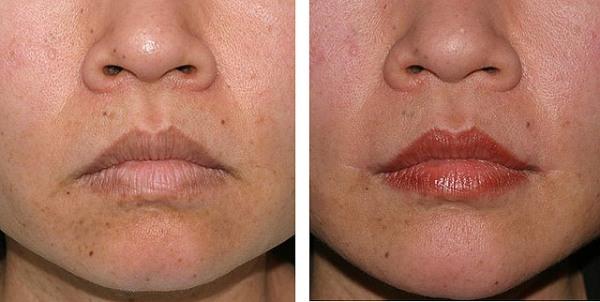 Поднять уголки губ гиалуроновой кислотой и ботоксом