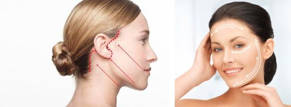 Разновидности подтяжки лица хирургическим путем