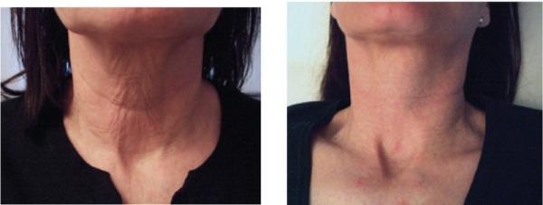 аппарат rf лифтинг для кожи лица