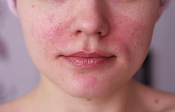 Увеличение губ ювидерм ультра 3 отзывы
