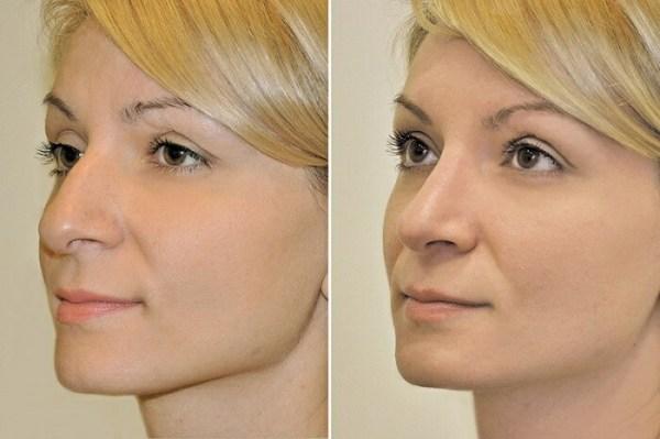 Крючковатый нос и его коррекция