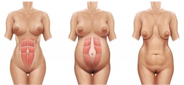 Расхождение мышц живота после родов что делать
