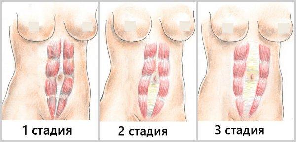 Расхождение мышц живота после родов фото