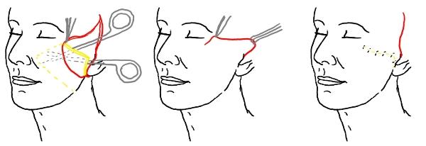 Подтяжка лица хирургическим путем проведение