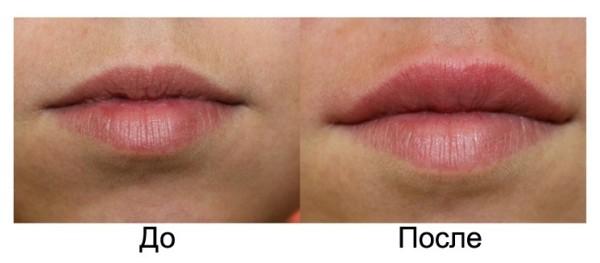 Поднять уголки губ гиалуроновой кислотой видео