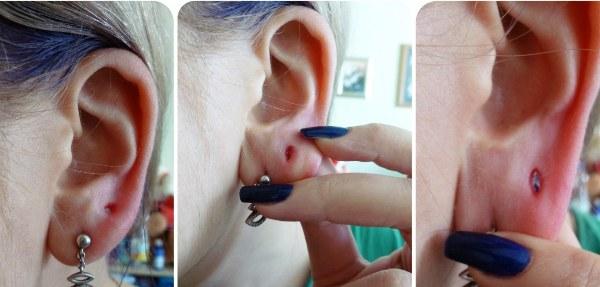 Как делают и затягивают тоннели в ушах