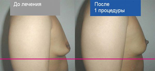 Фото до и после подтяжки мезонитями