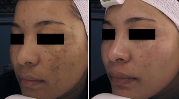 Техника удаления пигментных пятен на лице лазером