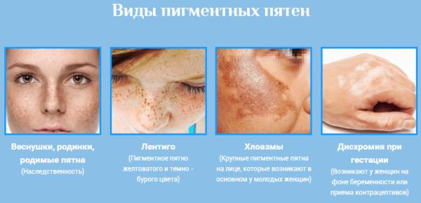 Удаление пигментных пятен на лице лазером отзывы