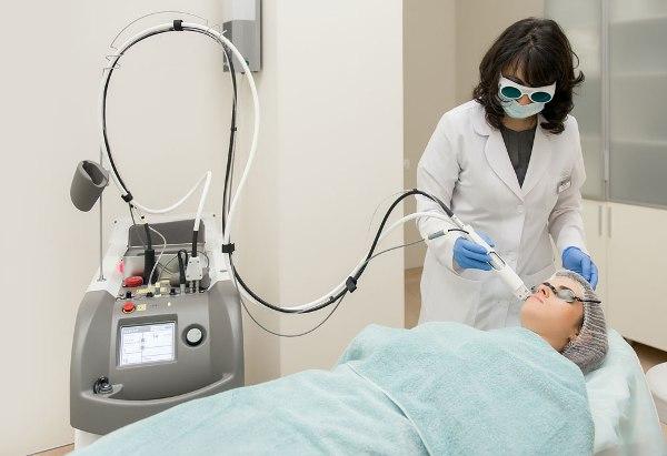 Удаление шрамов на лице лазером отзывы