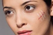 Методы удаления шрамов на лице