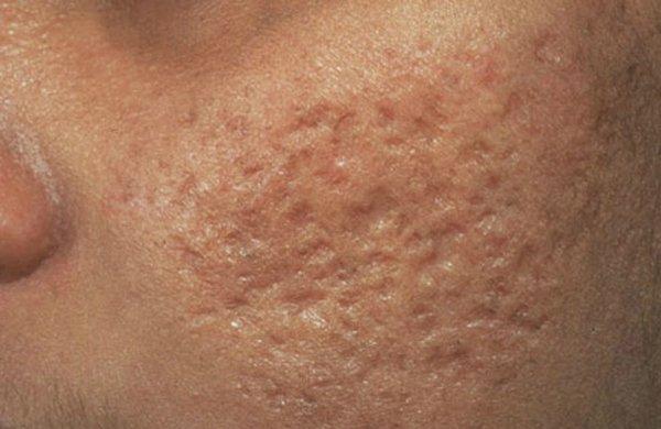 Лазерное удаление рубцов и шрамов на лице