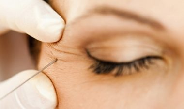 Как устранить последствия уколов ботокса вокруг глаз
