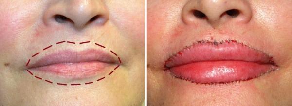 Увеличение губ без инъекций отзывы