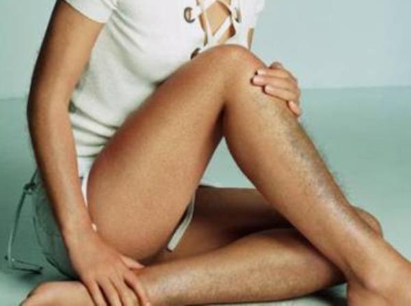Лечение гирсутизма у женщин препараты