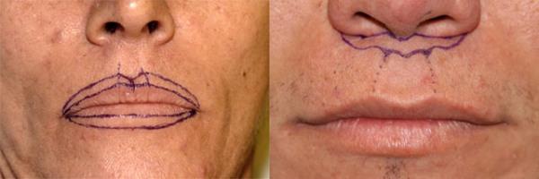 Операция булхорн фото до и после