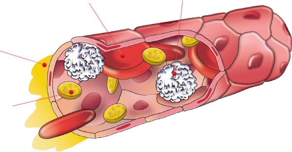 Как действуют микротоки