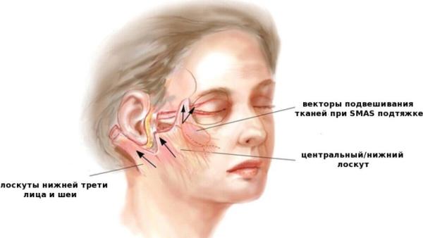 Эндоскопическая подтяжка средней зоны лица отзывы