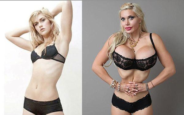 Фото модели до и после пластики