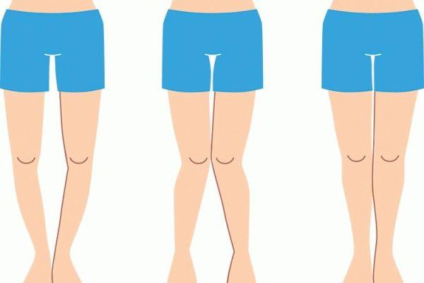 Кривые ноги как исправить в домашних условиях