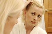 Лечение андрогенной алопеции у женщин