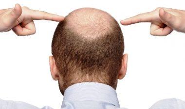 От чего зависит цена пересадки волос на голове