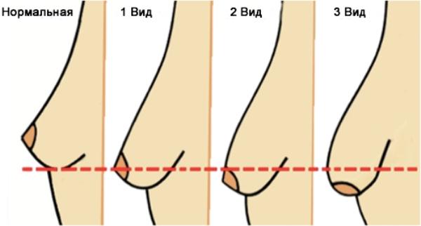 Тубулярная форма груди