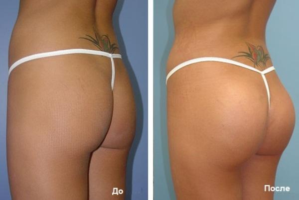 Глютеопластика фото до и послеГлютеопластика фото до и после