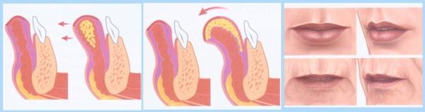 Увеличение губ липофилинг