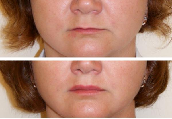 Липофилинг губ фото до и после