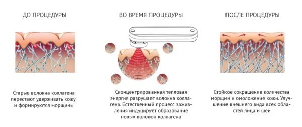 Массажер домашняя мезотерапия лица gezatone m8810