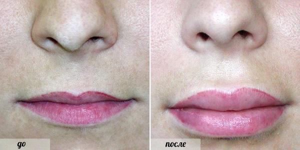 Отзывы об увеличении губ