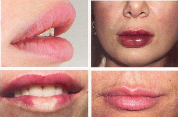 Сколько держится липофилинг губ