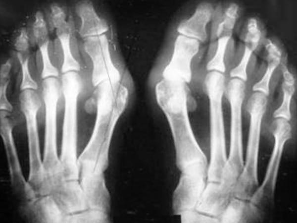 Лазерное удаление косточки на большом пальце ноги