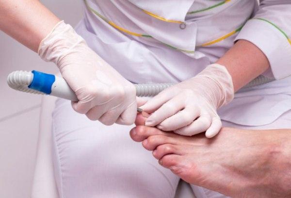 Удаление вросшего ногтя на ноге лазером цена
