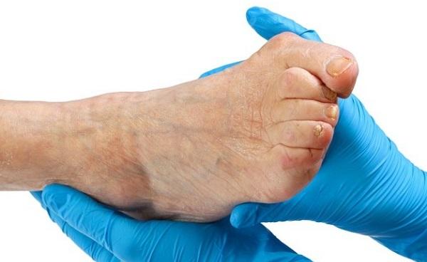 Удаление косточки на большом пальце ноги