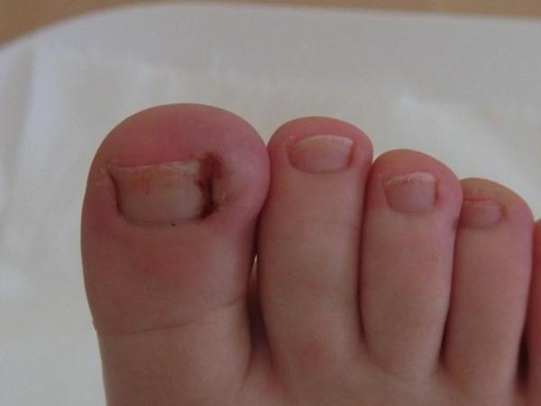 Удаление вросшего ногтя на ноге хирургическим путем