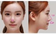 Коррекция кончика носа под местной анестезией
