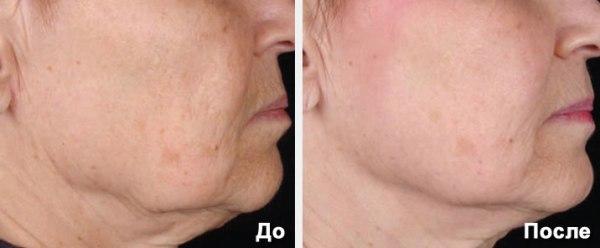 Фракционное лазерное омоложение кожи лица отзывы