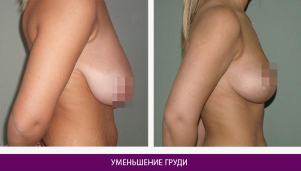 Операция по уменьшению грудей отзывы