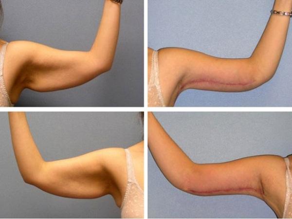 Липосакция рук фото до и после
