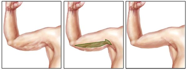 Подтяжка рук брахиопластика