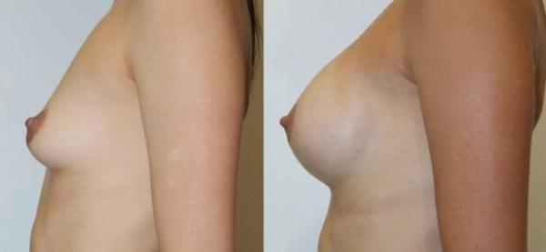Увеличение груди биоимплантами