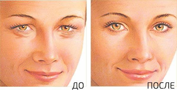Кантопексия фото до и после