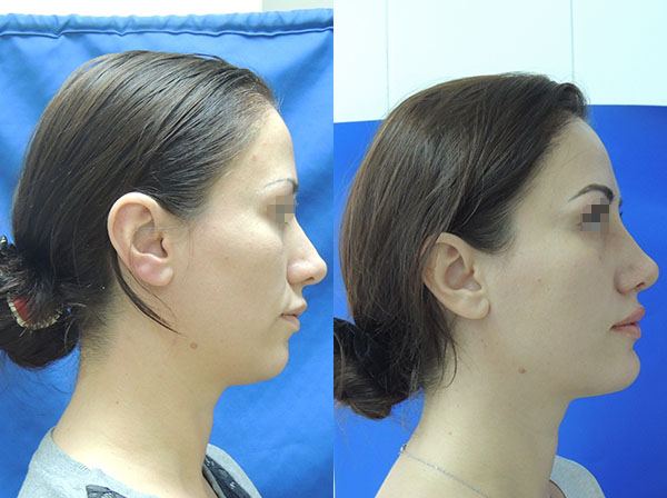 Ментопластика фото до и после